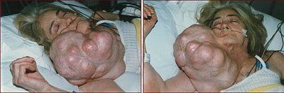 worlds-heaviest-neck-tumor_49.jpg