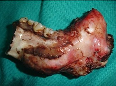excision-portion-jaw-remove-ameloblastoma..jpg