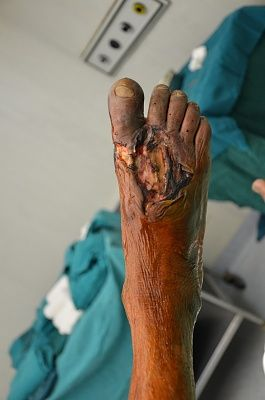 foot-20infection-20-281-29.jpg