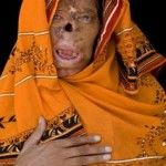 bashiran-bibi-acid-attack-victim1-150x150.jpg