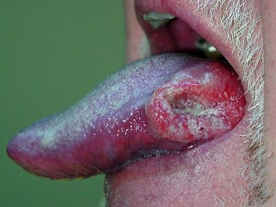 20071112-oral-cancer.jpg