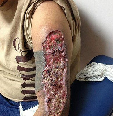 what-happens-your-body-when-you-do-krokodil-zombie-drug4.jpg