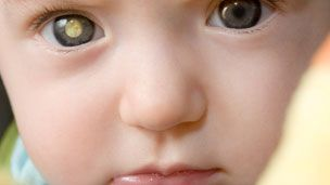 _52564439_retinoblastoma_eye_glow2.jpg