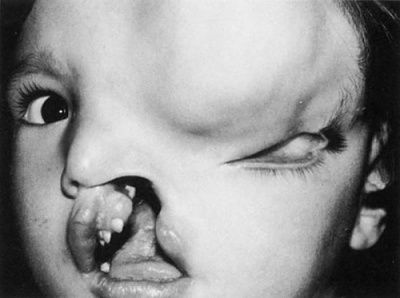 tessier-cleft-large-frontal-meningoencephalocele-duane-s-clinical-ophthalmology-vo.jpg